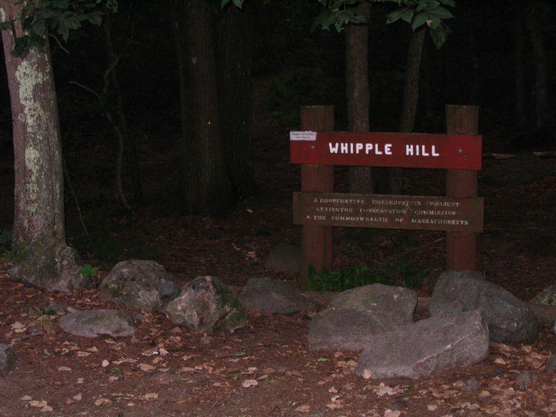 Whipple sign 071810